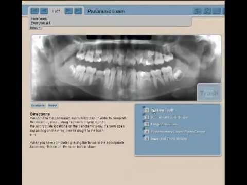 orthodontics: panoramic radiographic analysis fro crooked teeth