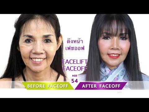 ครีมป้องกันสำหรับใบหน้าของจุดเม็ดสี