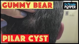 A Cyst that Reminds us of... Gummy Bears!!