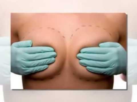 Jak zrobić operacji na raka piersi