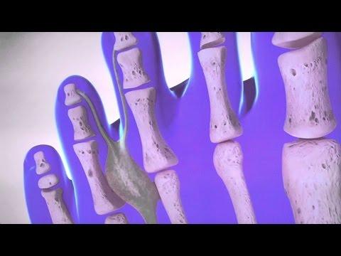 La gymnastique à la varicosité des membres inférieurs