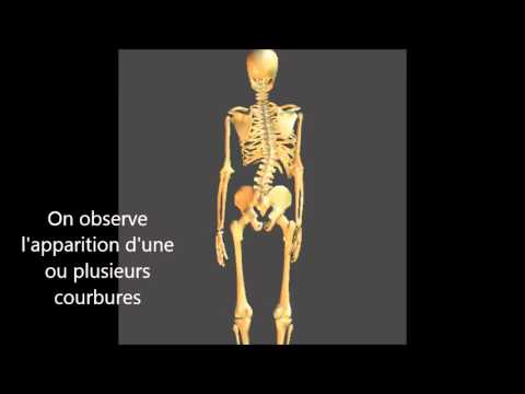 Scoliosis 2-3 gradi allatto di trattamento di adulti