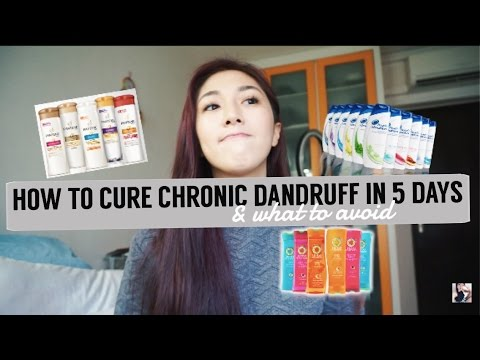 Video How to cure Chronic Dandruff in 5 days, SUPER EFFECTIVE