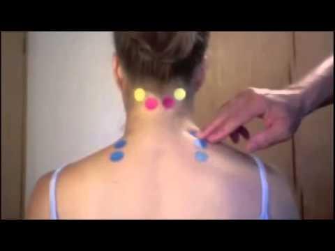 Die Grützbeutel auf dem Hals die Behandlung von den Volksmitteln