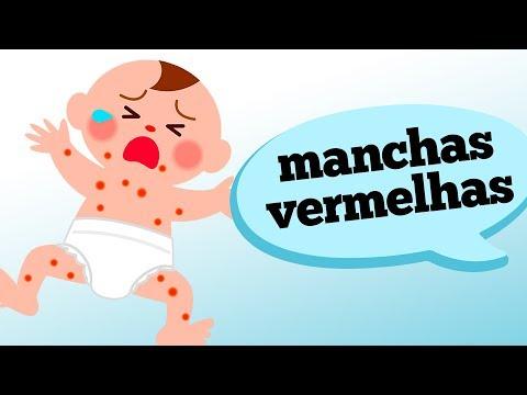 Eczema em crianças em lábios