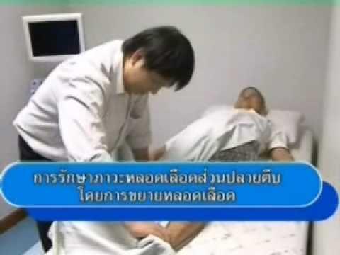 เส้นเลือดขอดทางการแพทย์ของการรักษาหลอดอาหาร