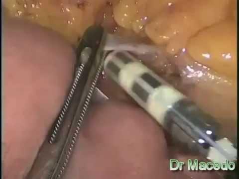 Fungus toenails dermatophytes