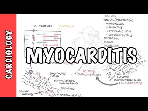 Zapalenie mięśnia sercowego - przyczyny, patofizjologia, badania i metody leczenia