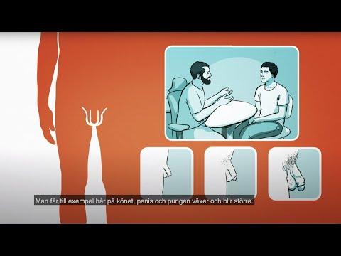 Spontaniczna erekcja
