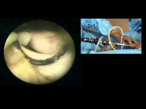 Hogyan lehet megkülönböztetni a prosztatagyulladást az urethritistől