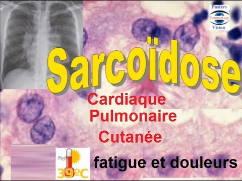 Hypertension sur le fond de larythmie