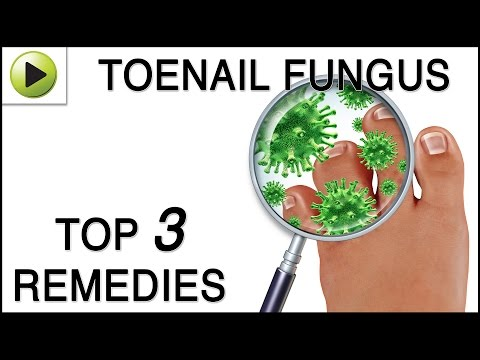 , title : 'Toenail Fungus - Natural Ayurvedic Home Remedies'