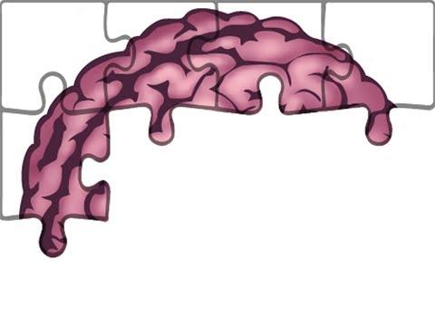 Die Neuralgie schejnogo der Abteilung des Bildes