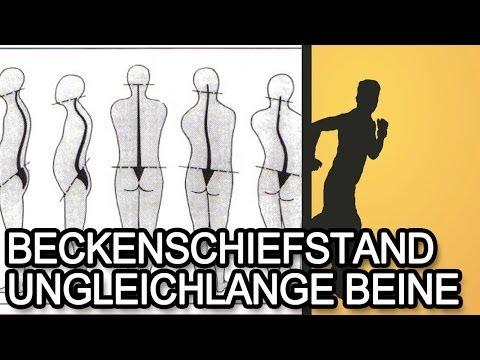 Schmerzen im unteren Rücken und Unterleib Beine