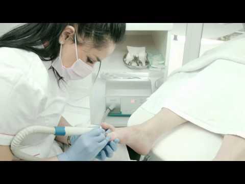 Chirurgiczne usunięcie kości na palucha w permu