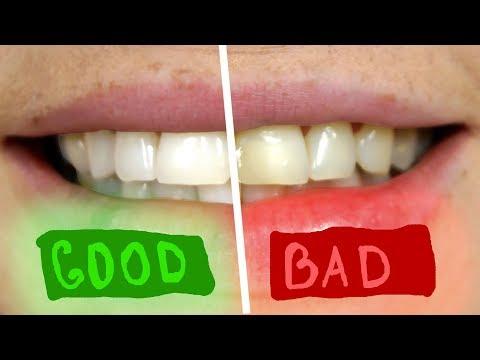 Отбелить зубы за 5 минут содой