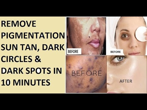 How To Remove Tan Naturally And Fast