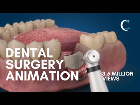 MIS BondBone Surgery 2020 (3D Medical Animation)