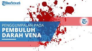 Deep Vein Thrombosis, Penyakit atau Gangguan Penggumpalan Darah yang Terjadi di Dalam Pembuluh Vena