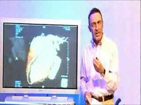 Ipertensione diastolica provoca trattamento