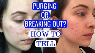 AM I PURGING OR BREAKING OUT? | How To Tell