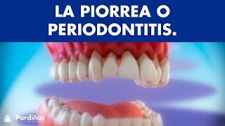 Piorrea o peridontitis - Enfermedad periodontal ©