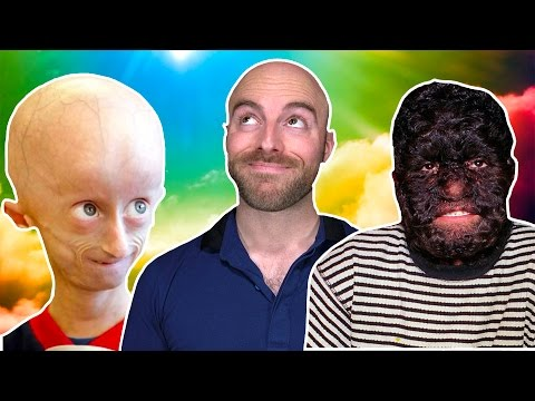 10 People Who Were Miraculously Cured!