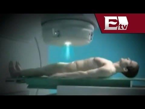Foto cánceres de la glándula de la próstata en los hombres