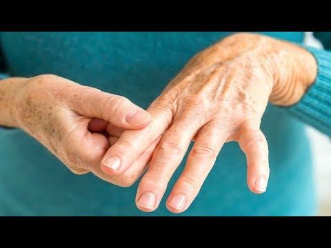 Quanto costano hondroprotektory per le articolazioni