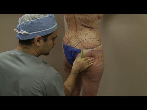 Chirurgical les augmentations du membre combien coûte