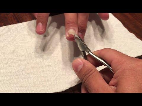 Ointments upang gamutin eksema nail