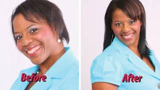 Do It Yourself Hair Loss Solutions From Imagine Hair