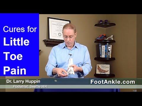 Koślawe kolana u dzieci ćwiczenia