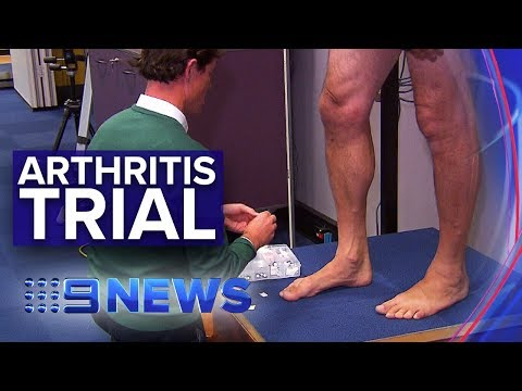 New clinical trials on arthritis in the feet | Nine News Australia