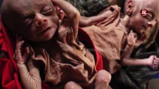 Deprivation Of Healthcare For Rohingya