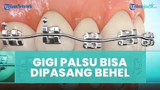 Pasien yang Pasang Gigi Palsu Bisa Dipasang Behel, Ini Penjelasan Dokter