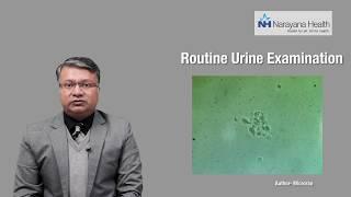 Diagnosis & Treatment of Foamy Urine   Dr. Vikas Jain