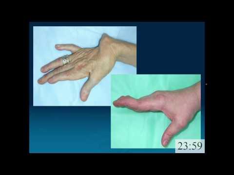 Profilaktyka żylaków kończyn dolnych
