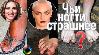 Рейтинг звездной непрезентабельности: у кого внизу страшнее? #ноги #краснаядорожка #педикюр #ужас