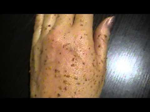 Удаление пигментных пятен на лице после прыщей
