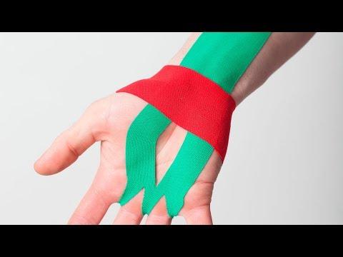 Стабилизация лучезапястного сустава с помощью кинезиологического тейпирования