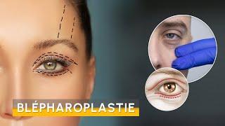 Video Chirurgie des paupières
