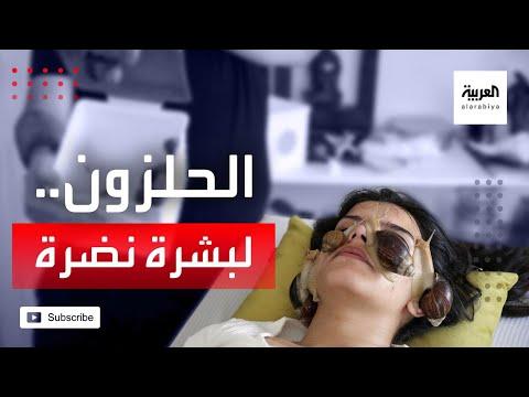 العرب اليوم - شاهد: الحلزون الأرضي يرمم البشرة في الأردن ويمنحها النضارة!