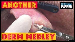 A Dr Pimple Popper Derm Medley