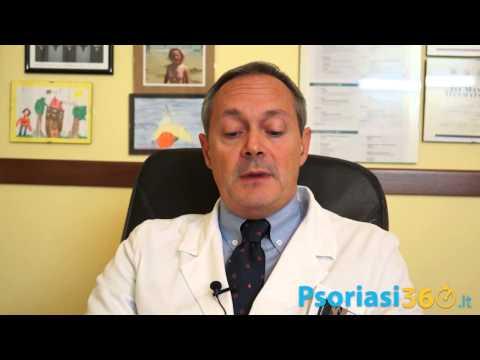 Apparizione di psoriasi su labbra vulvar