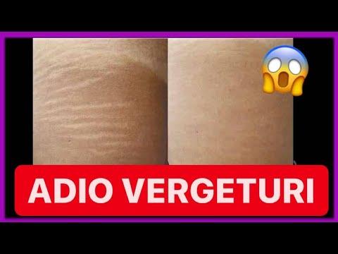 Capsule pentru durere în articulațiile genunchilor