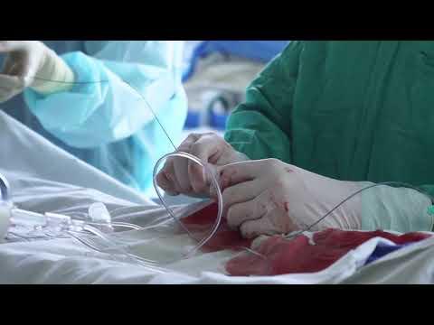Селективная церебральная ангиография при атериовенозной мальформации