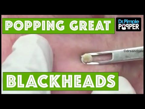 Great Blackheads on Grandpa!