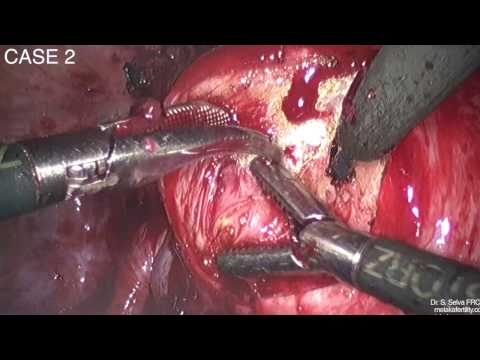 Laparoskopowy zabieg usunięcia adenomiozy