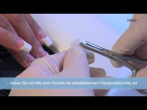 Das Mittel des Kampfes mit gribkom auf penopolistirolom die Decke in der Küche